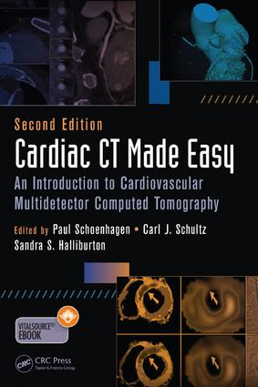 Cardiac CT Made Easy: An Introduction to Cardiovascular Multidetector Computed Tomography, Second Edition, 2nd Edition (e-Book) book cover