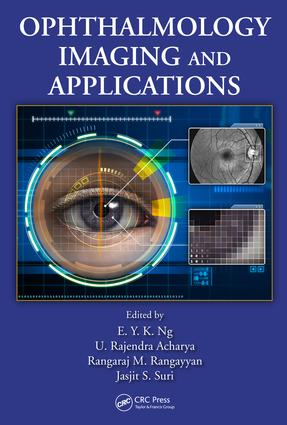 Effects of Electromagnetic Fields on Specific Absorption Rate and Heat Transfer in the Human Eye