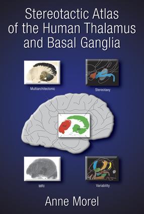 Stereotactic Atlas of the Human Thalamus and Basal Ganglia: 1st Edition (Hardback) book cover