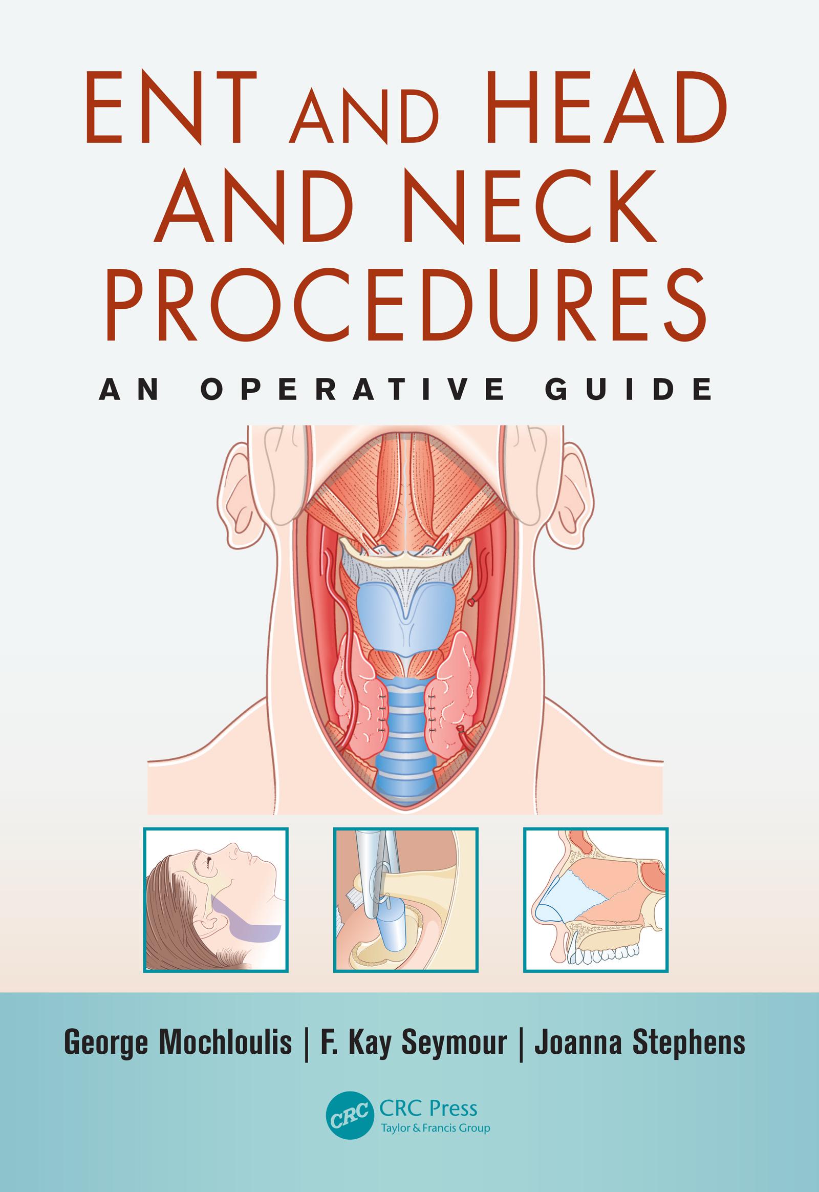 Submandibular gland excision