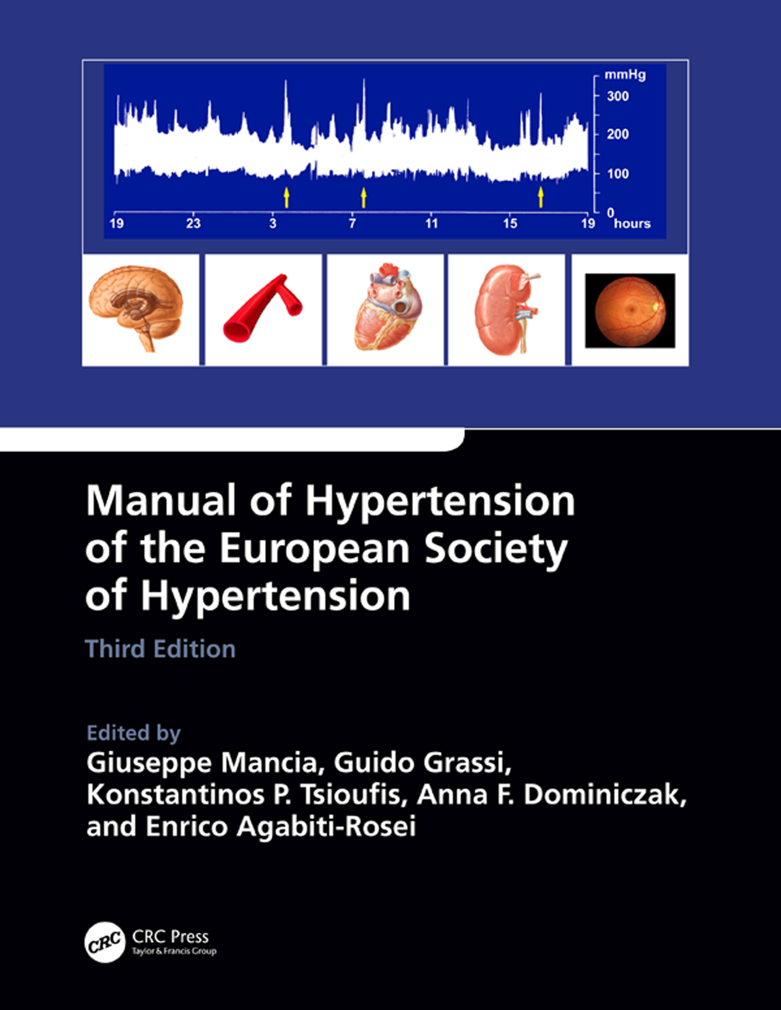 Genetic Basis of Blood Pressure and Hypertension