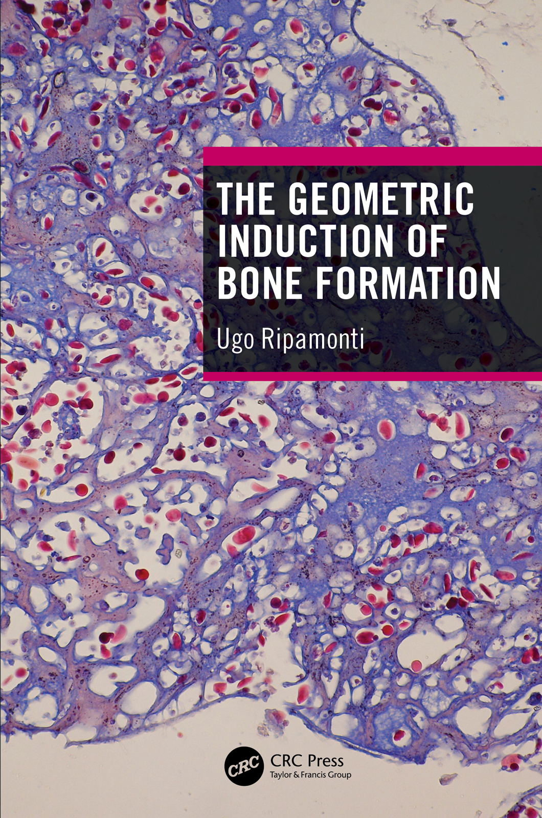 The Geometric Induction of Bone Formation