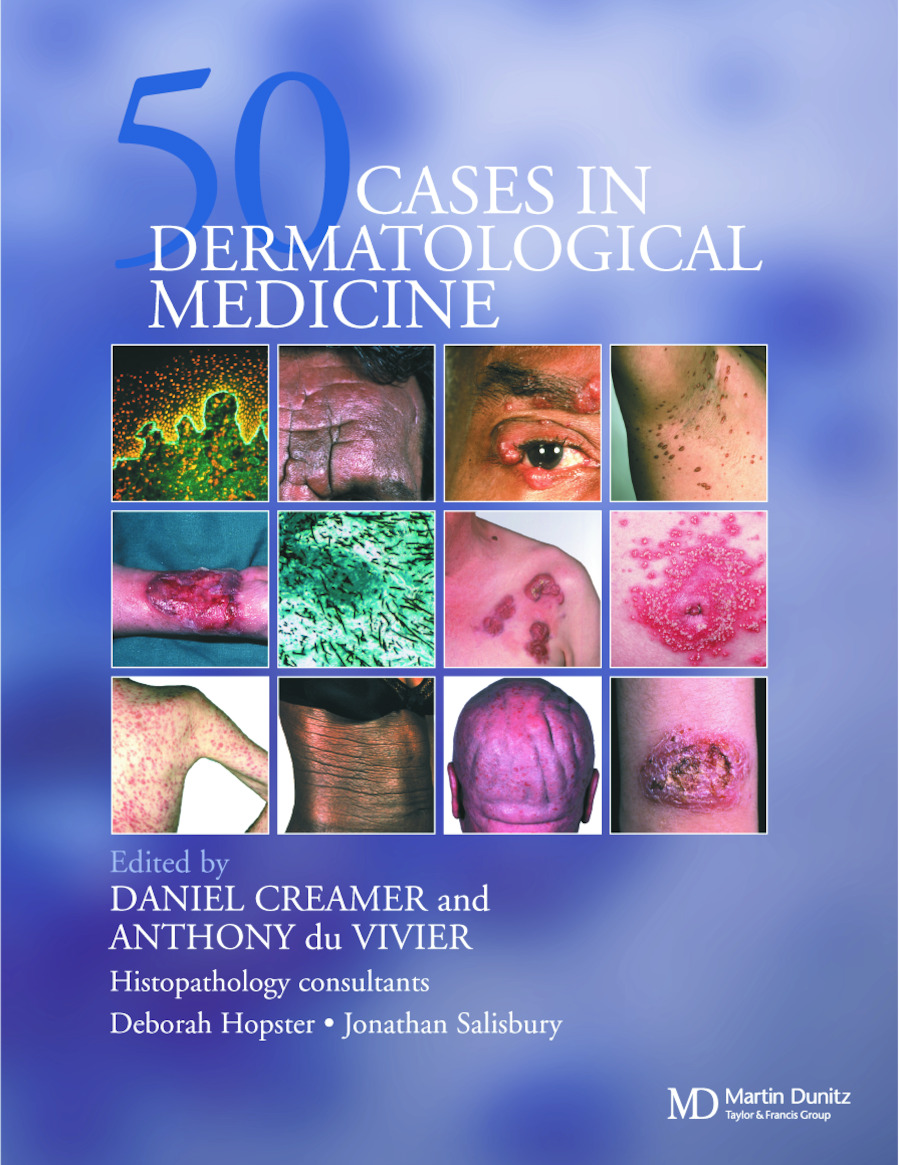Fifty Dermatological Cases: 1st Edition (e-Book) book cover