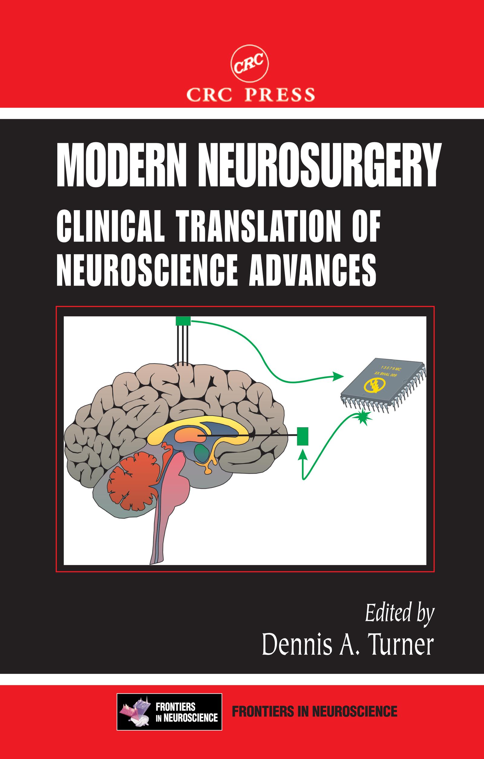 Delayed Cerebral Vasospasm: Current Hypotheses and Future Treatments