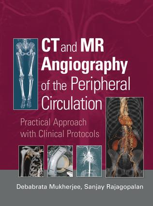 MR angiography of the lower extremity circulation with protocols