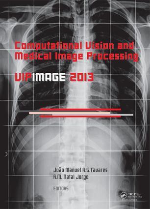 Automatic thresholding method for 3D X-ray microtomography analysis