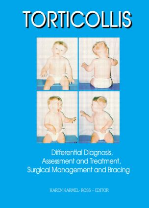 Torticollis: Differential Diagnosis, Assessment and Treatment, Surgical Management and Bracing, 1st Edition (Paperback) book cover