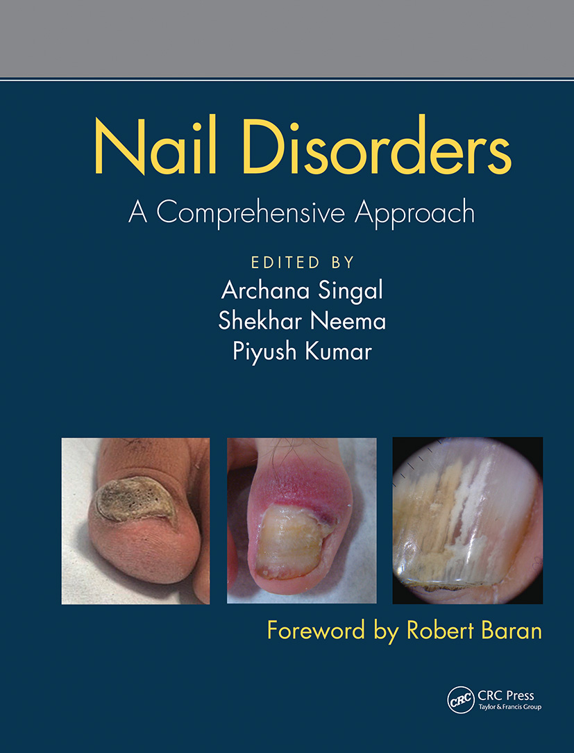 Nail Disorders: A Comprehensive Approach book cover