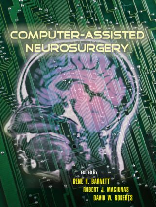 Computer-Assisted Neurosurgery: 1st Edition (Hardback) book cover
