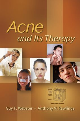 Acne and Its Therapy: 1st Edition (Hardback) book cover