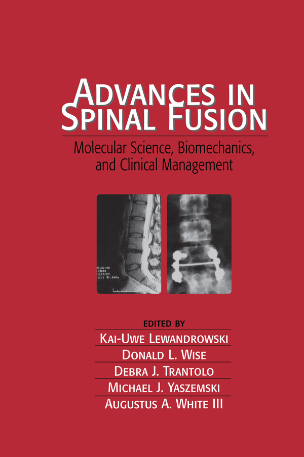 Advances in Spinal Fusion: Molecular Science, BioMechanics, and Clinical Management, 1st Edition (Hardback) book cover