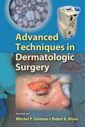 Advanced Techniques in Dermatologic Surgery book cover