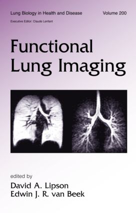 Functional Lung Imaging: 1st Edition (Hardback) book cover