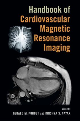Handbook of Cardiovascular Magnetic Resonance Imaging book cover