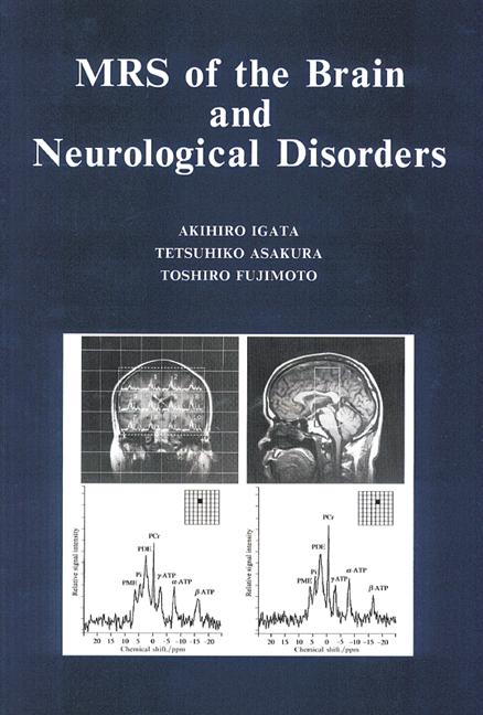 MRS of the Brain and Neurological Disorders: 1st Edition (Hardback) book cover
