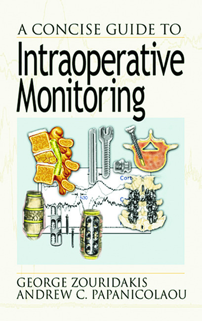 A Concise Guide to Intraoperative Monitoring: 1st Edition (Hardback) book cover