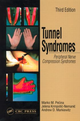 Tunnel Syndromes: 3rd Edition (Hardback) book cover