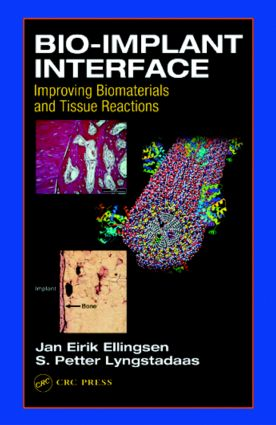 Bio-Implant Interface: Improving Biomaterials and Tissue Reactions, 1st Edition (Hardback) book cover