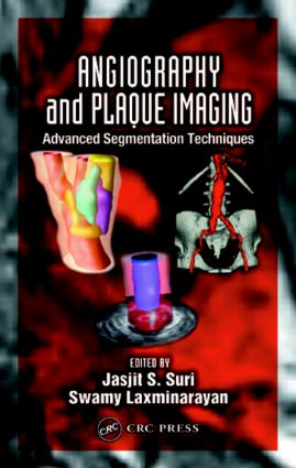 Angiography and Plaque Imaging: Advanced Segmentation Techniques, 1st Edition (Hardback) book cover