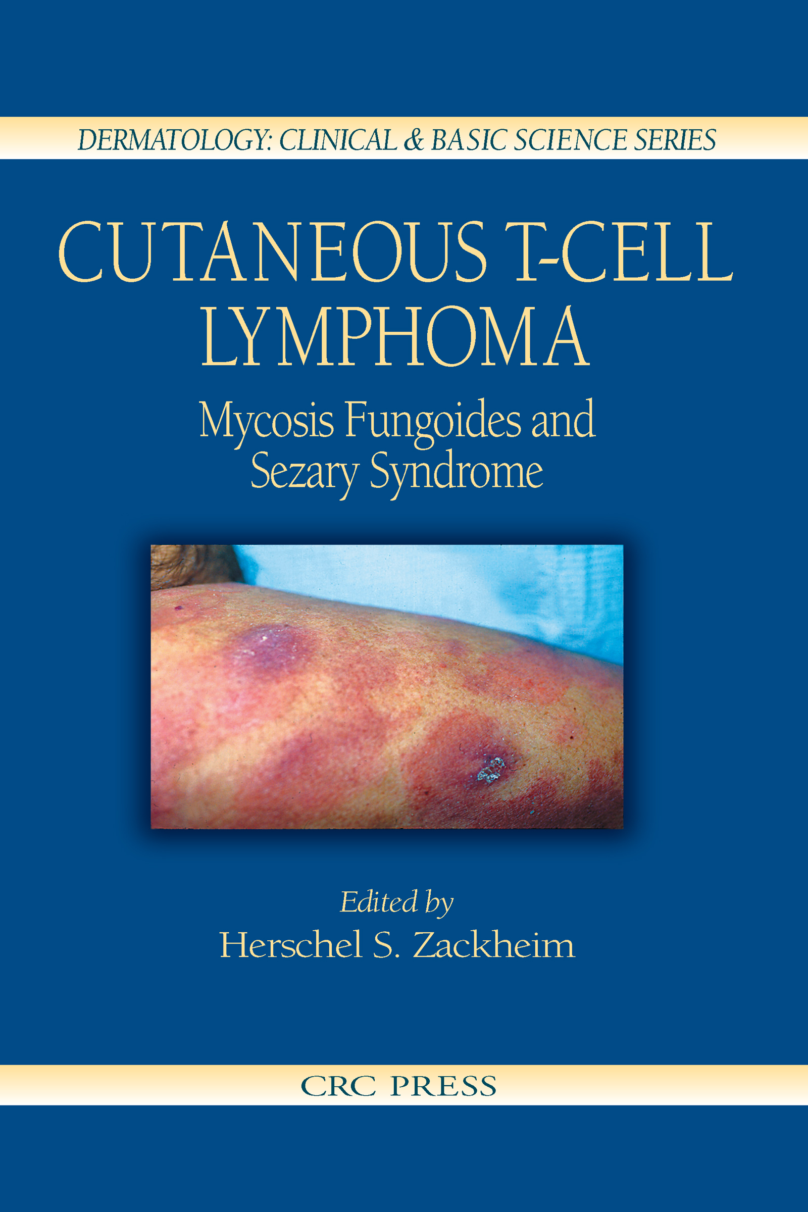 Cutaneous T-Cell Lymphoma: Mycosis Fungoides and Sezary Syndrome, 1st Edition (Hardback) book cover
