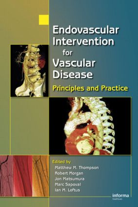 Endovascular Intervention for Vascular Disease: Principles and Practice, 1st Edition (Hardback) book cover
