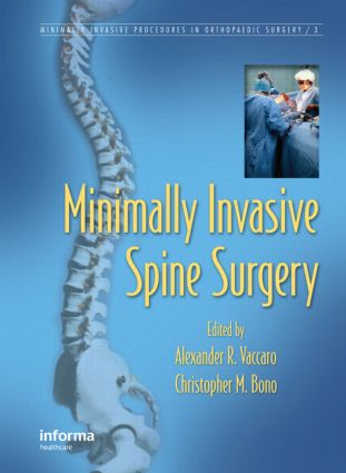 Minimally Invasive Spine Surgery (Hardback) book cover