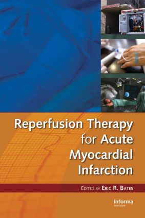 Reperfusion Therapy for Acute Myocardial Infarction book cover