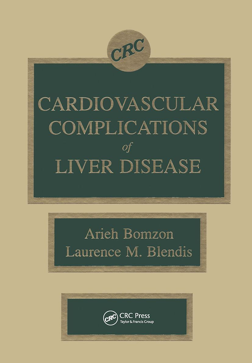 Cardiovascular Complications of Liver Disease: 1st Edition (Hardback) book cover