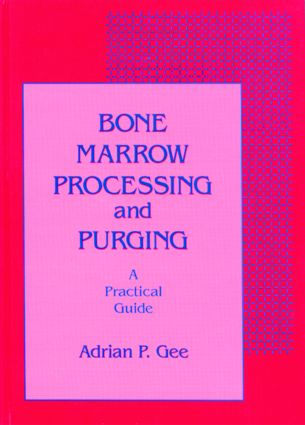 Bone Marrow Processing and Purging: a Practical Guide, 1st Edition (Hardback) book cover