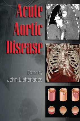 Acute Aortic Disease book cover