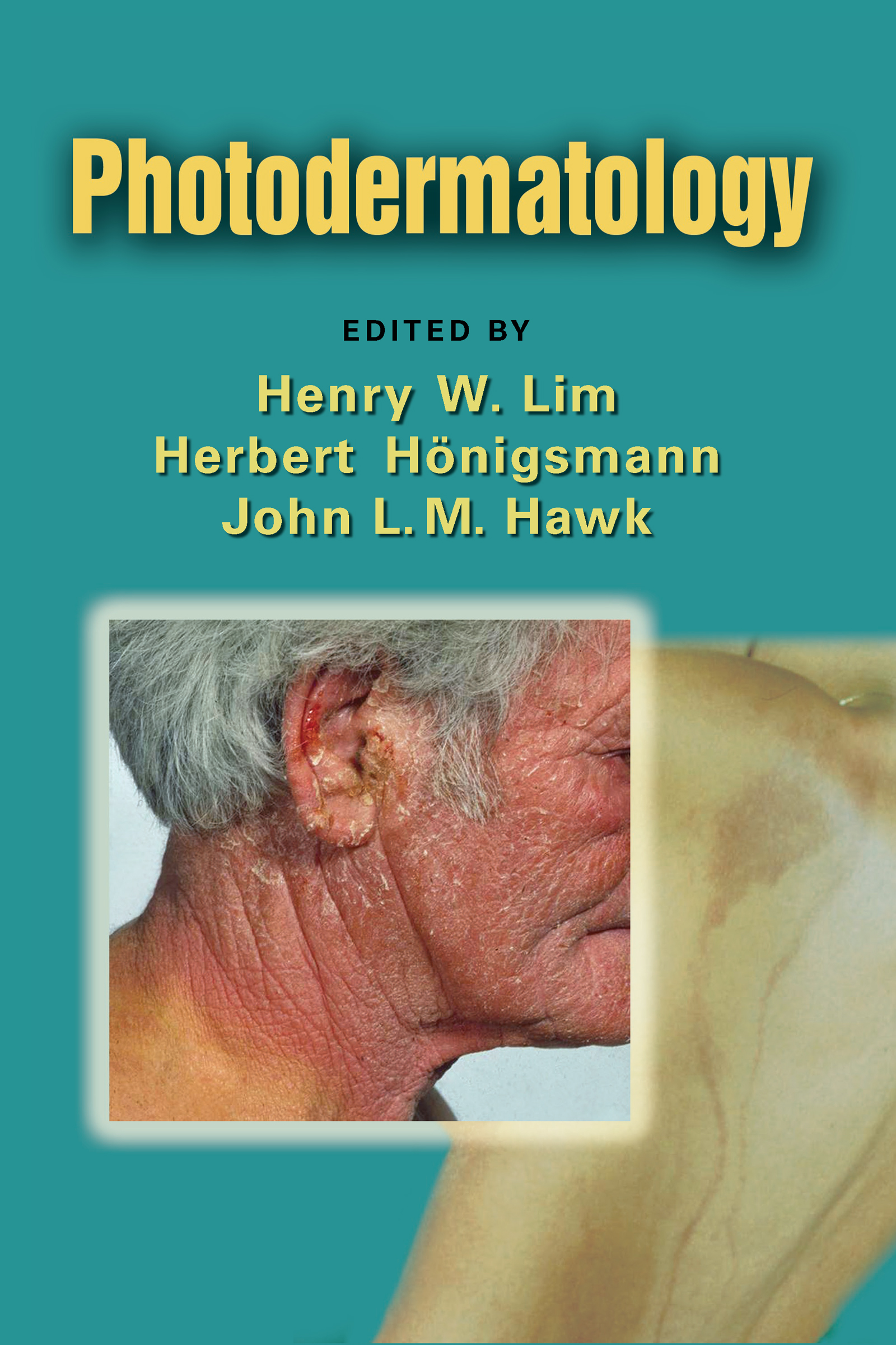 Photodermatology book cover