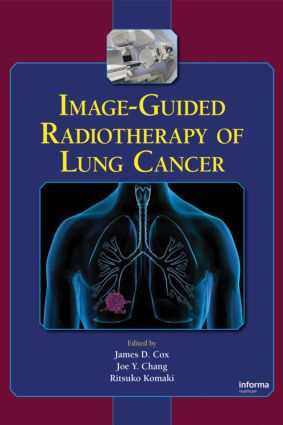 Image-Guided Radiotherapy of Lung Cancer: 1st Edition (Hardback) book cover