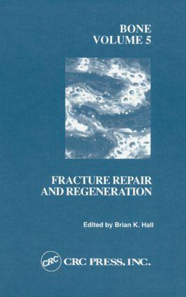 Bone, Volume V: A Treatise, 1st Edition (Hardback) book cover