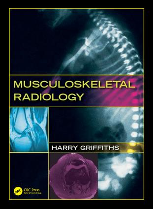Musculoskeletal Radiology: 1st Edition (Hardback) book cover