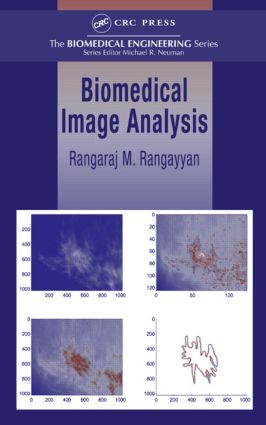 Biomedical Image Analysis: 1st Edition (Hardback) book cover