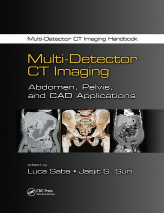 Multi-Detector CT Imaging: Abdomen, Pelvis, and CAD Applications book cover