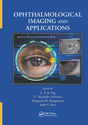 Ophthalmological Imaging and Applications: 1st Edition (Paperback) book cover