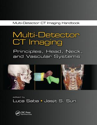 Multi-Detector CT Imaging: Principles, Head, Neck, and Vascular Systems book cover