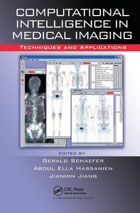 Computational Intelligence in Medical Imaging