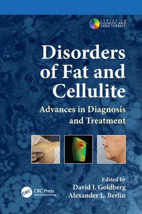 Disorders of Fat and Cellulite: Advances in Diagnosis and Treatment, 1st Edition (Paperback) book cover