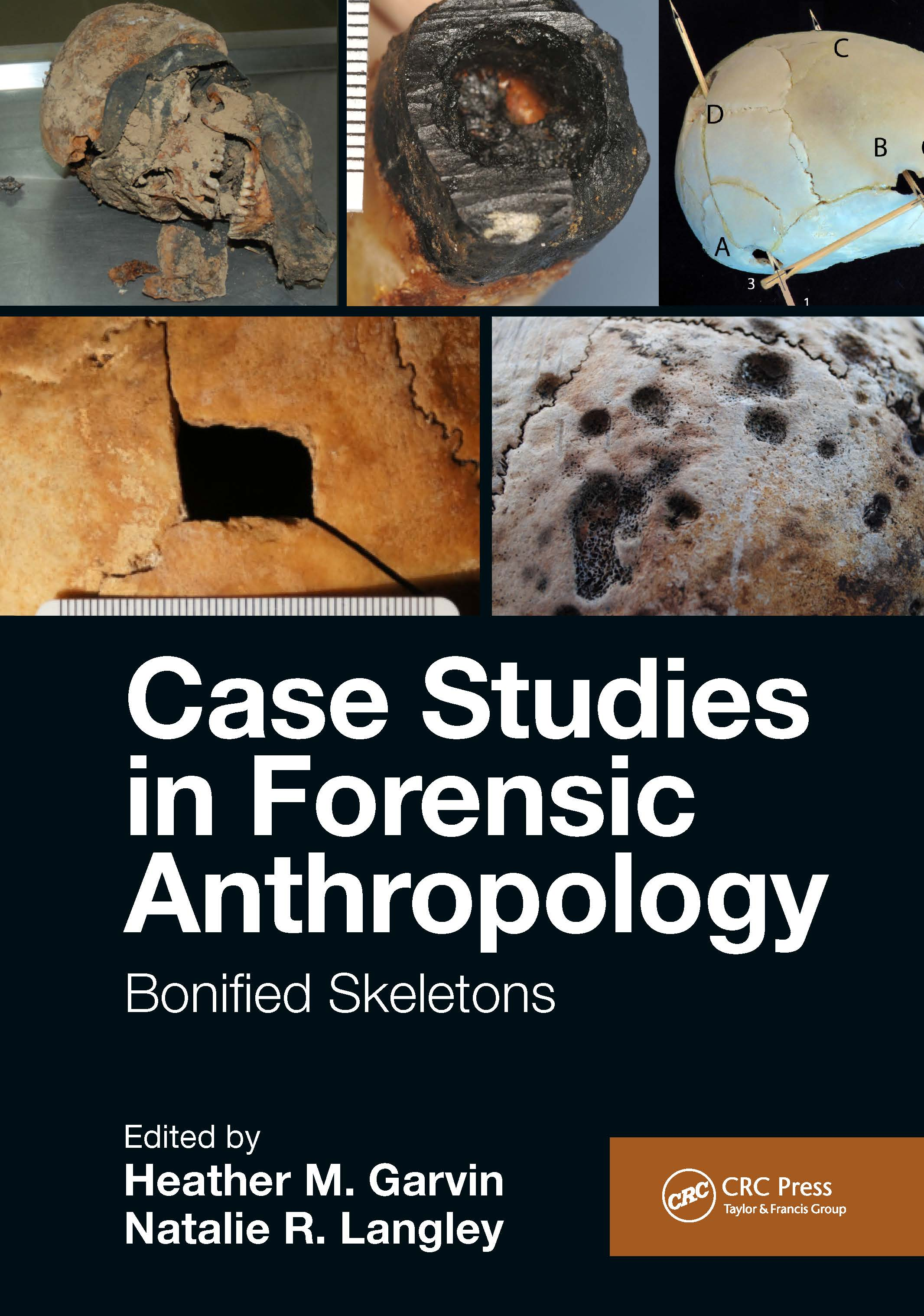 Case Studies in Forensic Anthropology: Bonified Skeletons book cover