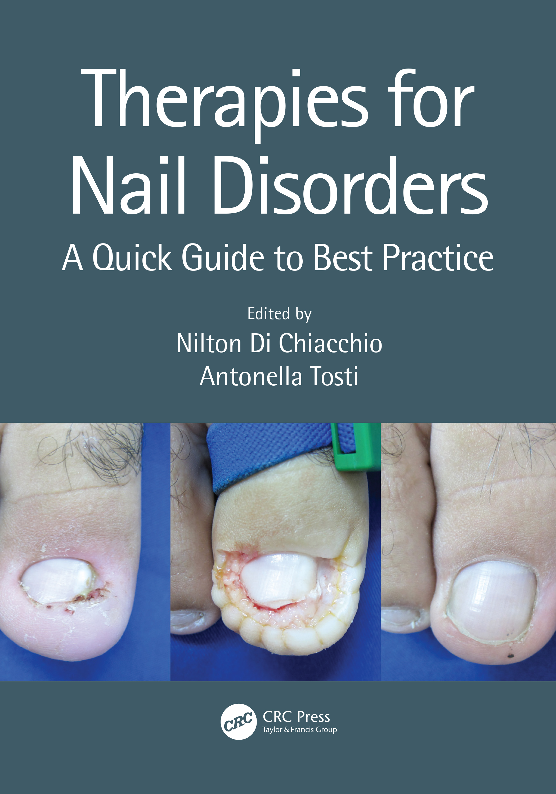 Therapies for Nail Disorders: A Quick Guide to Best Practice, 1st Edition (Paperback) book cover