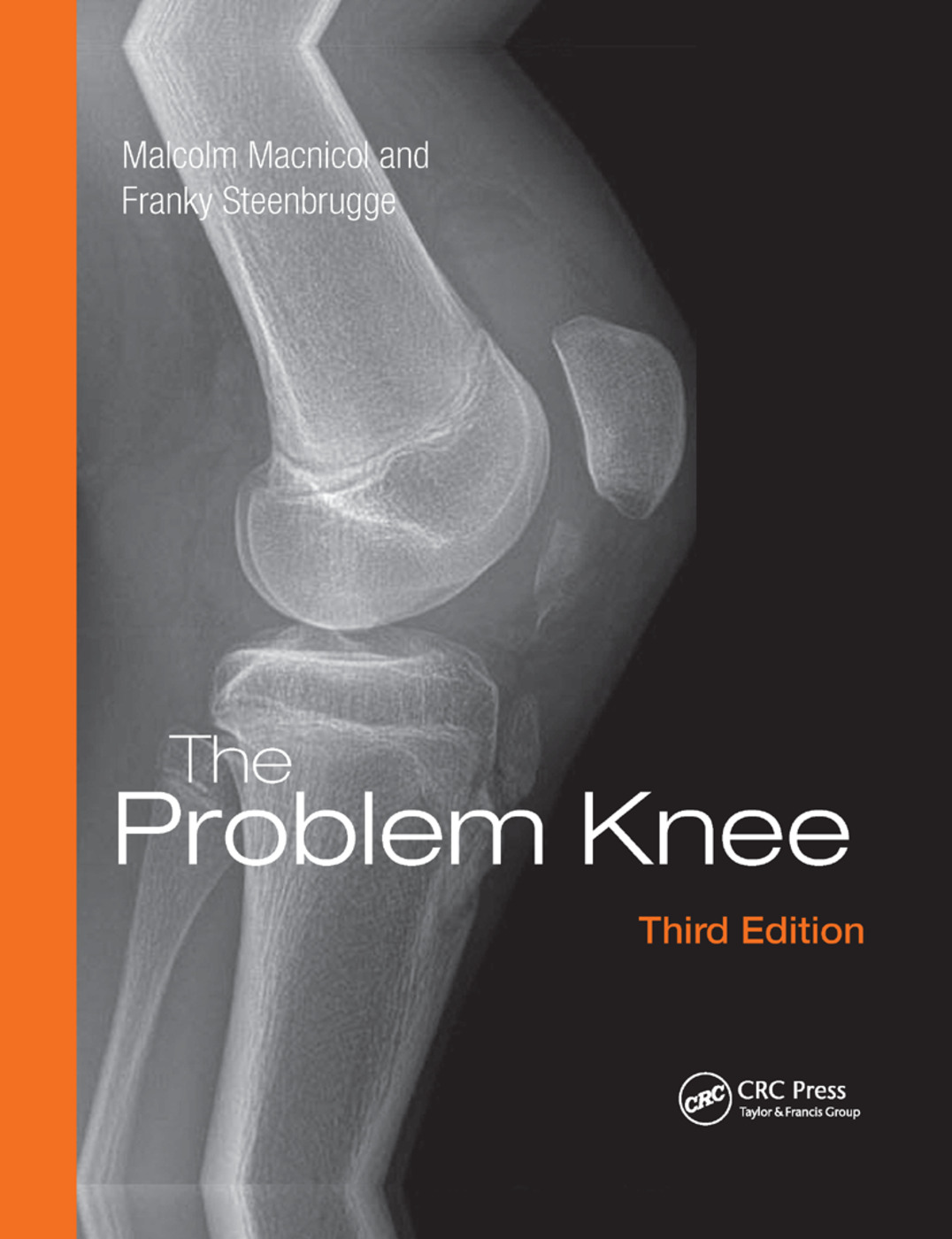 The Problem Knee: 3rd Edition (Paperback) book cover