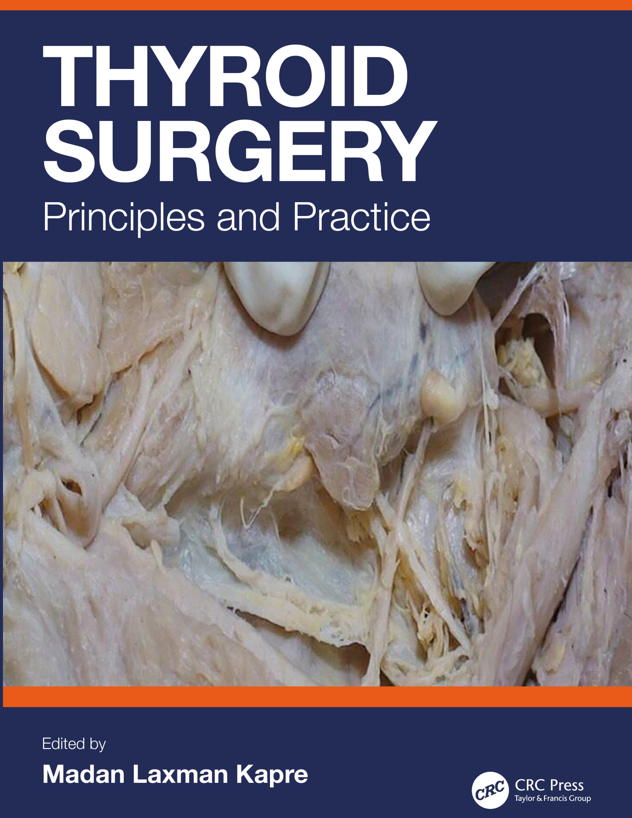 Thyroid Surgery: Principles and Practice, 1st Edition (Hardback) book cover