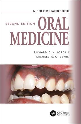 Oral Medicine: 2nd Edition (Paperback) book cover