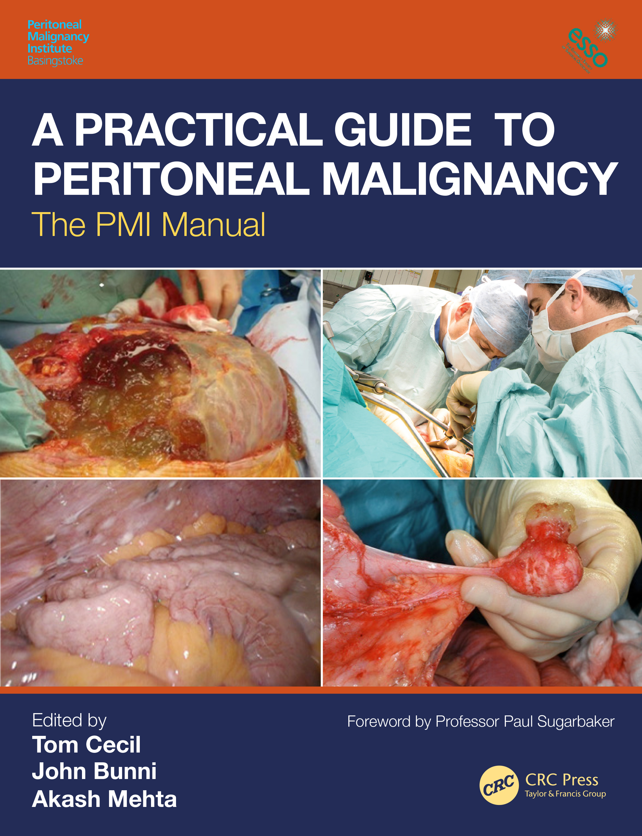 A Practical Guide to Peritoneal Malignancy