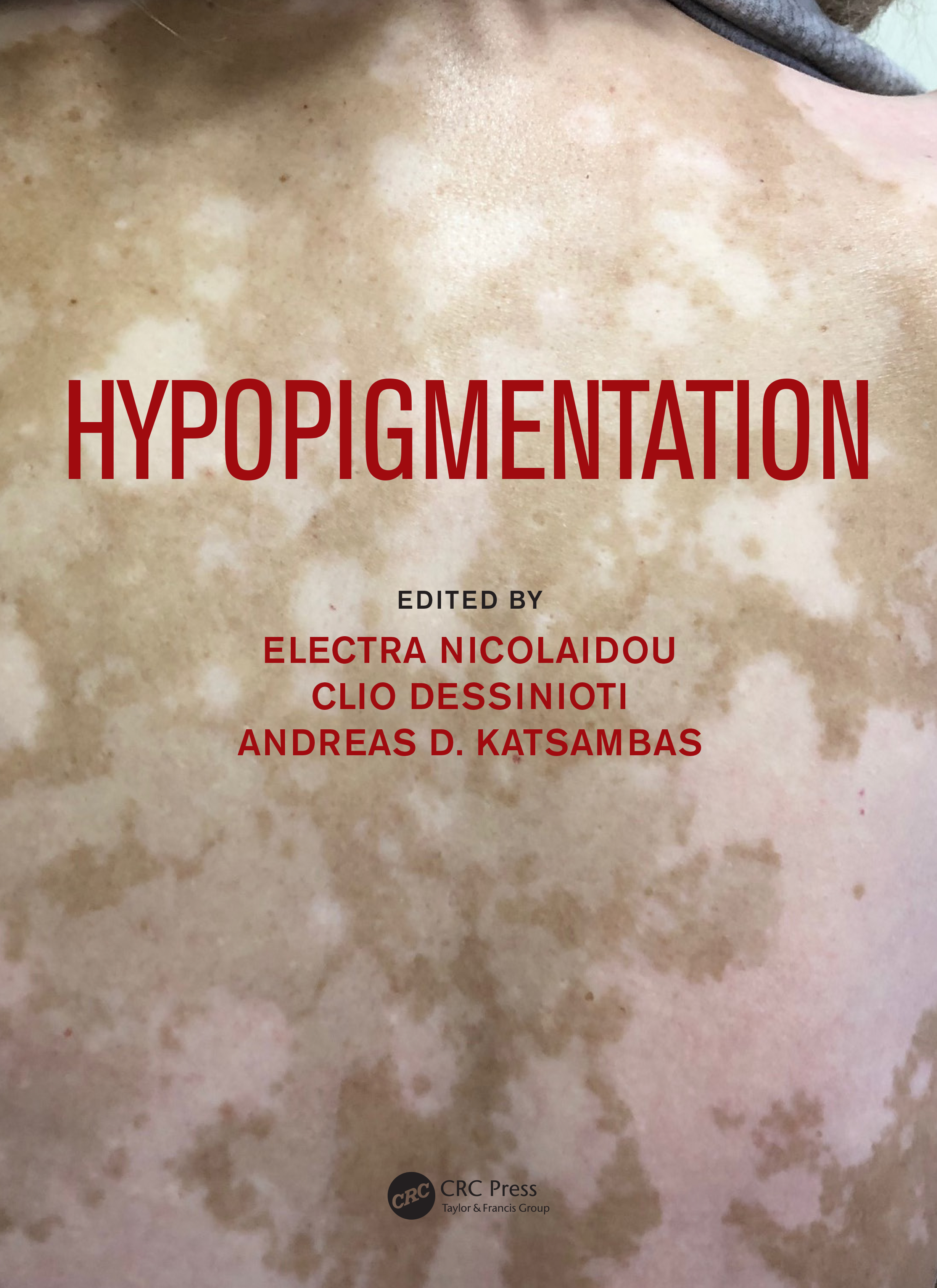 Hypopigmentation: 1st Edition (Hardback) book cover