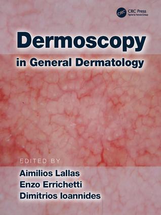Hyperpigmented dermatoses