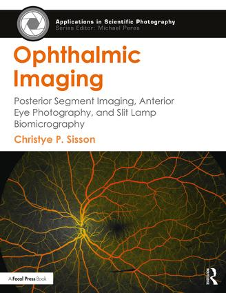 Ophthalmic Imaging: Posterior Segment Imaging, Anterior Eye Photography, and Slit Lamp Biomicrography book cover