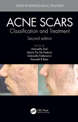 Acne Scars: Classification and Treatment, Second Edition book cover